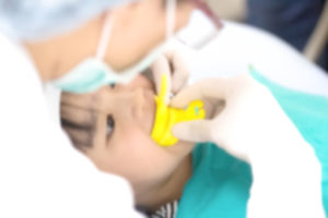 pediatric dentistry fluoride treatment